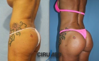Lipoimplant combination Brazilian butt lift after 1488402