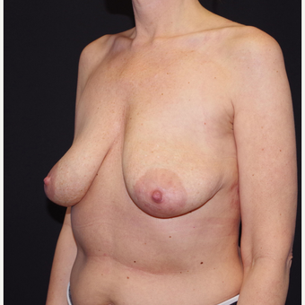35-44 year old woman treated with Breast Implant Removal after 3741649