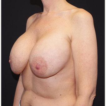 35-44 year old woman treated with Breast Implant Removal before 3741649