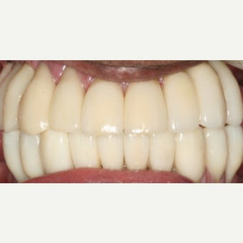 20 Ceramic Crowns after 2595466