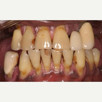 20 Ceramic Crowns before 2595466