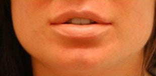 Corrective Lip Reduction after 136735