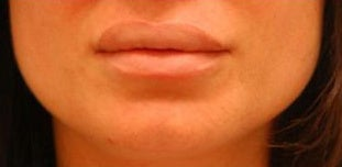 Corrective Lip Reduction before 136735