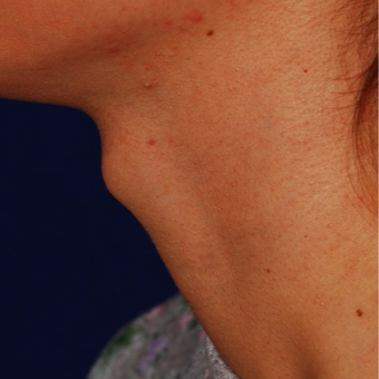 18-24 year old woman treated with Adam's Apple Reduction before 3624530