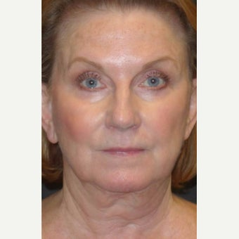 55-64 year old woman treated with Facelift Revision before 2220020