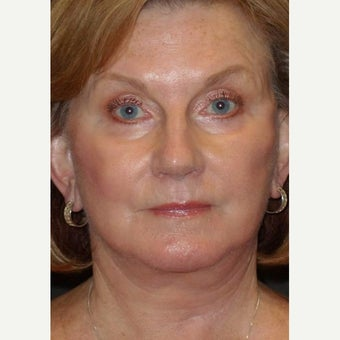 55-64 year old woman treated with Facelift Revision after 2220020