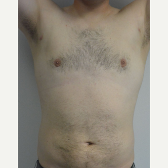 25-34 year old man treated with Male Breast Reduction after 3175410