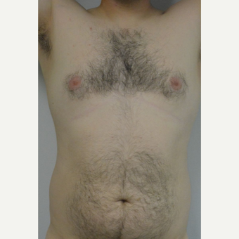 25-34 year old man treated with Male Breast Reduction before 3175410