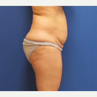 45-54 year old woman treated with Tummy Tuck before 2882903
