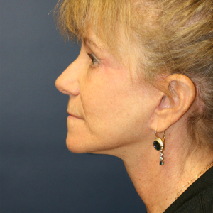 45-54 year old woman treated with Neck Lift after 3555327