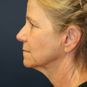 45-54 year old woman treated with Neck Lift before 3555327
