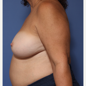 55-64 year old woman treated with Breast Implant Revision after 3782868
