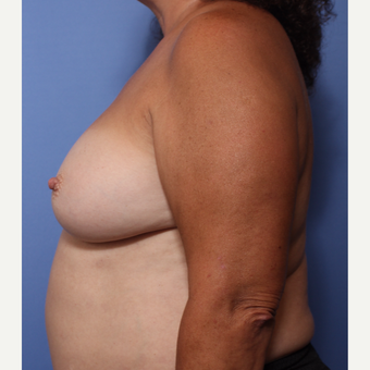 55-64 year old woman treated with Breast Implant Revision before 3782868