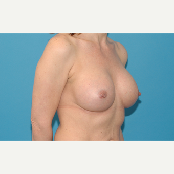 44 year old woman treated with Breast Implants after 3200737