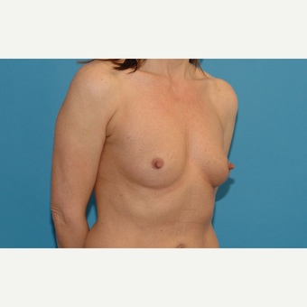 44 year old woman treated with Breast Implants before 3200737