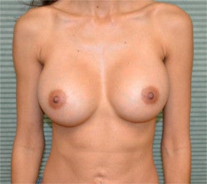 35 year old female breast augmentation after 1342405