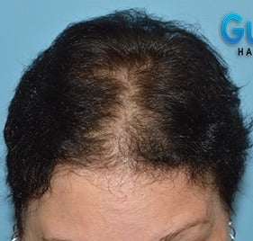 45-54 year old woman treated with Hair Loss Treatment before 3623623