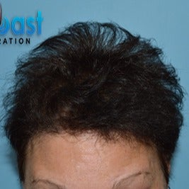 45-54 year old woman treated with Hair Loss Treatment after 3623623
