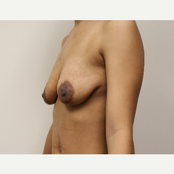 Breast Lift with Implants before 3417928