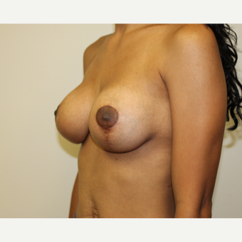 Breast Lift with Implants after 3417928