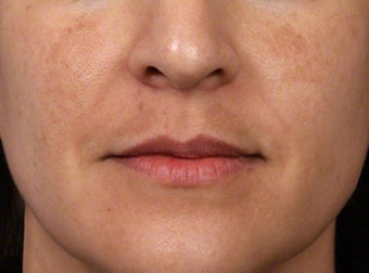 Brightening Facials for Melasma before 539894