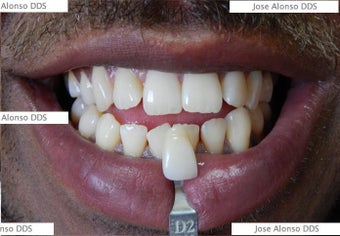 !Zoom Whitening after 1252339