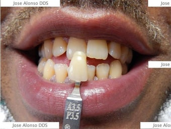!Zoom Whitening before 1252339