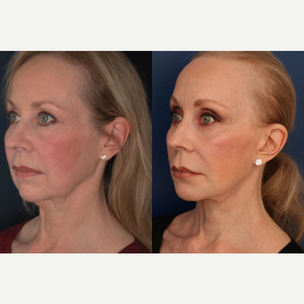 55-64 year old woman treated with Facelift after 3705777