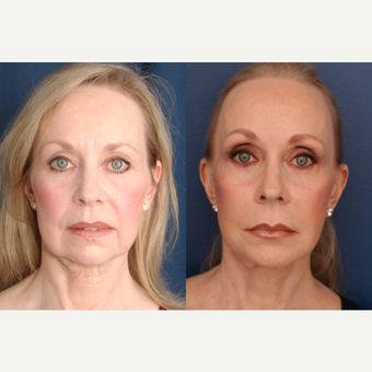 55-64 year old woman treated with Facelift before 3705777