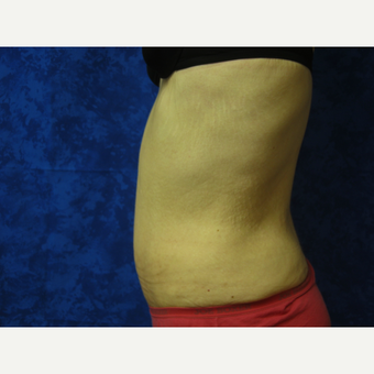 Tummy Tuck after 3301338