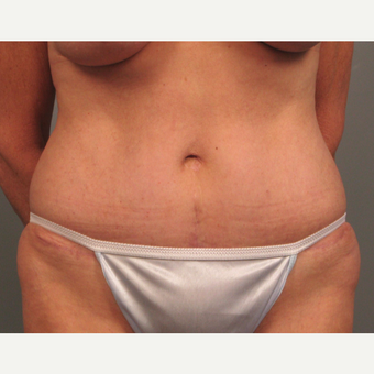 55-64 year old woman treated with Tummy Tuck after 3382612