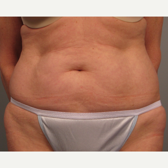 55-64 year old woman treated with Tummy Tuck before 3382612