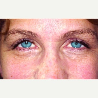 52 year old woman treated with Ptosis Surgery after 1990255