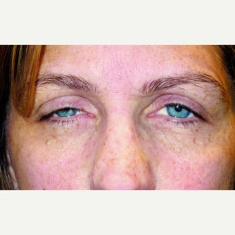 52 year old woman treated with Ptosis Surgery before 1990255