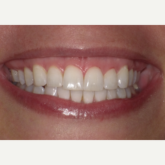 35-44 year old woman treated with Teeth Whitening after 3501693