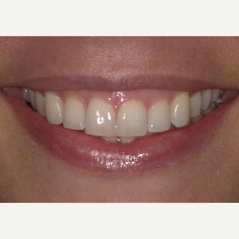 35-44 year old woman treated with Teeth Whitening before 3501693