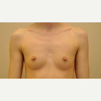 25-34 year old woman treated with Breast Augmentation before 3102909