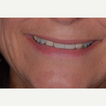 55-64 year old woman treated with Porcelain Veneers before 3650368