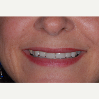 55-64 year old woman treated with Porcelain Veneers after 3650368