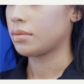 25-34 year old woman treated with Chin Implant after 3719121