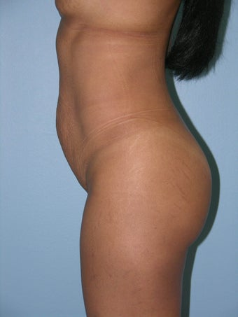 Abdominoplasty  1287791