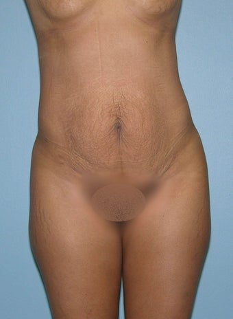 Abdominoplasty  before 1287791