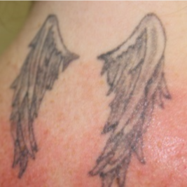 25-34 year old woman treated with Tattoo Removal before 3122542