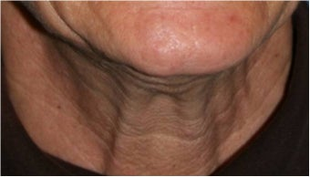 55 Year old female with aging neck due to neck bands.  She doesn't want a surgical neck lift before 766012