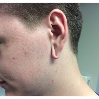 18-24 year old man treated with Ear Lobe Surgery before 3245277