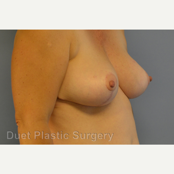 55-64 year old woman treated with Breast Reduction after 3350364