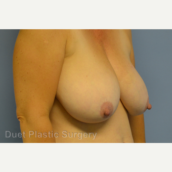 55-64 year old woman treated with Breast Reduction before 3350364