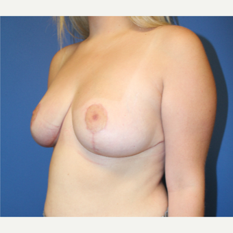 25-34 year old woman treated with Breast Reduction after 3570880