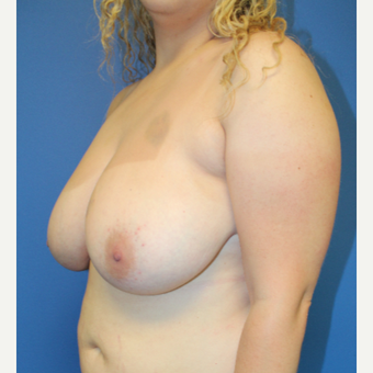 25-34 year old woman treated with Breast Reduction before 3570880