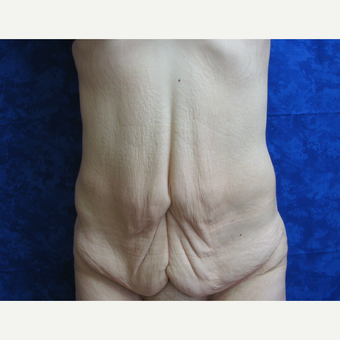 25-34 year old woman treated with Tummy Tuck before 3301326